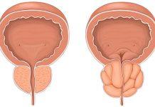 هایپرپلازی خوش خیم پروستات چیست؟