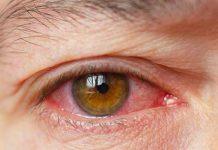 خشکی چشم چیست؟