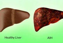 هپاتیت خود ایمنی چیست؟