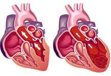 کاردیومگالی (بزرگ شدن قلب) چیست؟