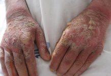 بیماری پلاگر چیست؟